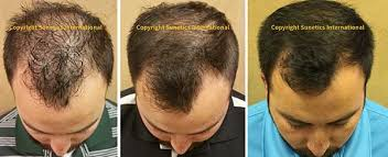 low level light therapy hair how it works sunetics lasers