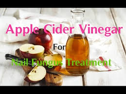 apple cider vinegar for nail fungus treatment youtube