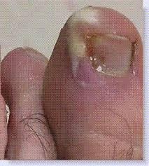 paronychia causes symptoms treatment prevention