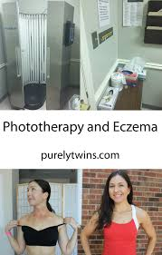 light therapy for eczema phototherapy to treat eczema before and after pictures