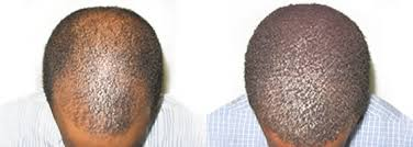 hairline restoration for black men african american hair transplant results ziering medical hair