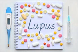 Business Consultation Report Sle by Lupus Market To Reach 3 2b By 2025 Due To In Class Drugs