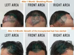 hair transplant month by month pictures hair transplant case study with 4239 grafts