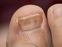 10 diseases your feet can reveal readers digest