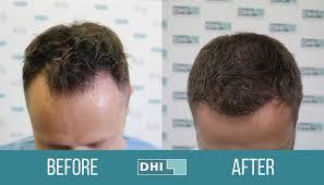 dhi hair transplant reviews dhi australia home facebook