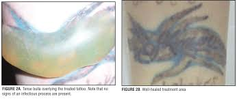 treatment of large bulla formation after tattoo removal with a q
