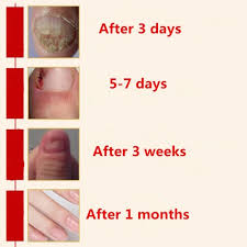 nail treatment picture more detailed picture about afy toenail