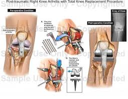 Right Knee Anatomy Post Traumatic Right Knee Arthritis With Total Knee Replacement