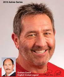 shane warne hair transplant hair loss treatments hair regrowth for hair loss advanced hair