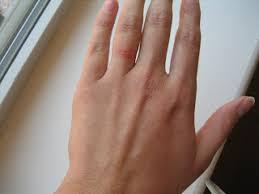 wedding ring dermatitis steece s pieces allergic to my wedding rings
