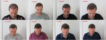 hair transplant month by month pictures hair transplant recovery