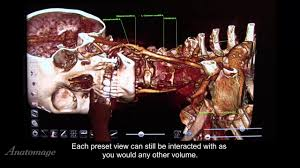 Anatomage Table How To Use The Curriculum In Anatomage Table 5 0 Youtube