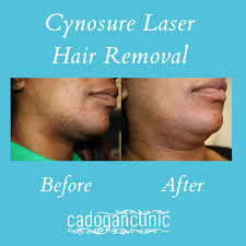 vectus laser hair removal reviews cynosure laser hair removal beforeandafter before after