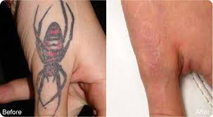 laser tattoo removal services high performance laser tattoo removal