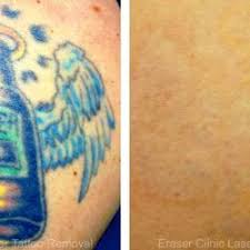 eraser clinic laser tattoo removal 76 photos u0026 41 reviews