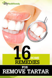 16 amazing home remedies to remove tartar diy health remedy