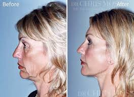 hairstyles that cover face lift scars face lift results before and after