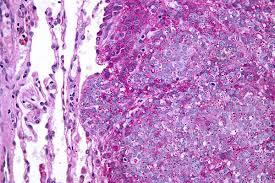 ewing u0027s sarcoma wikipedia