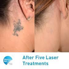 laser tattoo removal sydney 200 per treatment