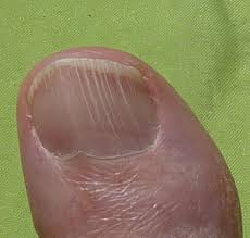 nails dry and brittle with vertical ridges on them