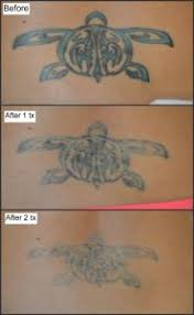 happy picosure patient baltimore tattoo removal testimonial