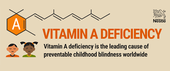 Childhood Blindness Causes Vitamin A A Dangerous Deficiency Infographic U2013 Nestle Usa U2013 Medium