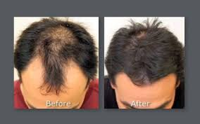 neograft recovery timeline neograft hair transplant results with automated fue hair restoration