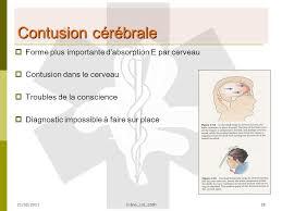 si e des motions dans le cerveau edited by bijscholing iodmh 21 02 2011 crâne col 120h1 lésions