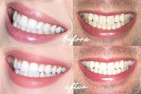 luster pro light teeth whitening system reviews good teeth whitening light reviews and product description feature