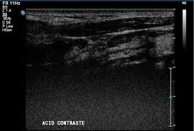 can contrast enhanced ultrasound with second generation contrast