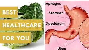 bh4u cabbage u2013 natural cure for stomach ulcer youtube