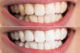 social circle dental blog