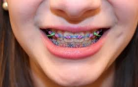 nickel free braces metal braces in orange county metal braces braces