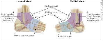 Ankle Ligament Tear Mri Management Of Ankle Sprains American Family Physician