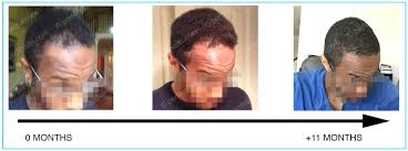 Can Wearing Hats Cause Hair Loss How Vitamin D Deficiencies Can Cause Hair Loss See Photos