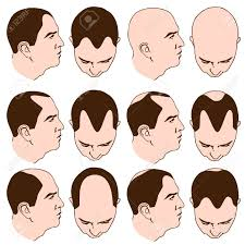 types of hair lines fascinating types of hairlines inside an image of man with various