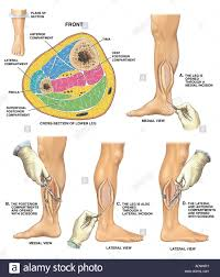 Knee Compartments Anatomy Compartment Syndrome Stock Photos U0026 Compartment Syndrome Stock