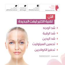 Face Acne Map Elite Derma Care Skin Laser And Anti Aging Center