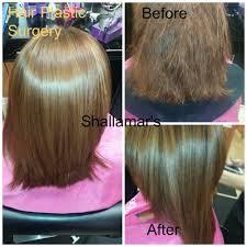 plastic hair hair plastic surgery orlando