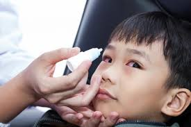 squint or strabismus causes and treatment
