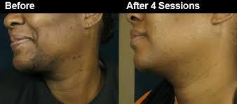does prids work on ingrown hairs men s laser hair removal for men in atlanta male hair removal