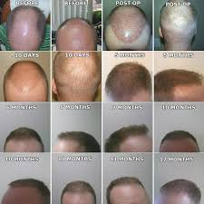 hair transplant month by month pictures neograft hair transplantation by dr pradeep sinha