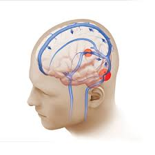 light headed and ears ringing what causes pulsatile tinnitus weill cornell brain and spine center