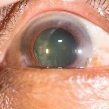 light streaks after cataract surgery can stem cells restore eye lenses following cataract surgery