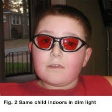 What Is Congenital Blindness Achromatopsia U2014 Aapos