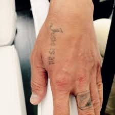 tattoo removal laser ästhetik institut