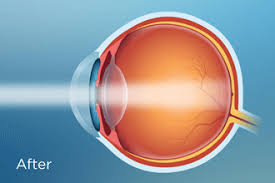 light streaks after cataract surgery macuhealth fight blindness reduce glare and eye strain