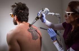 1 value laser tattoo removal in maryland u0026 washington dc zapatat