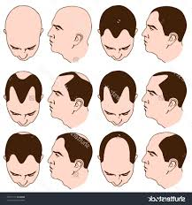 amazing types of hairlines best simple haircut in 2017