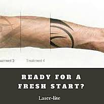 laser tattoo removal faqs laser lite birstall west yorks